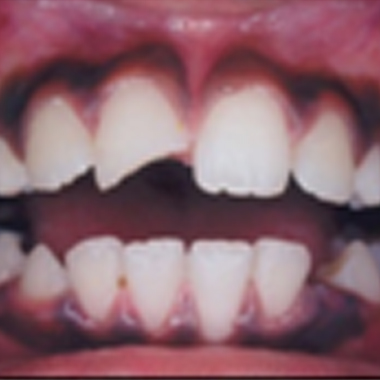 TOOTH CHIPPED WITH NO PAIN