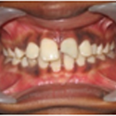 TOOTH CHIPPED WITH PAIN