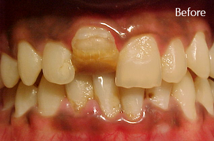 Curved tooth (Dilaceration)